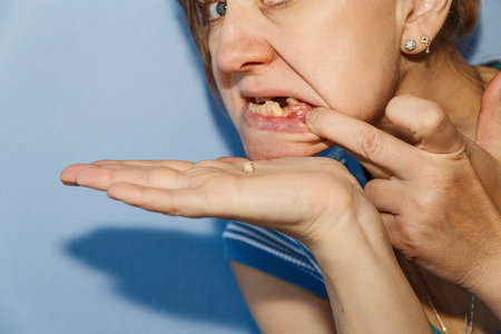 Women, showing mouth without tooth using fingers and dropped tooth crown.Focus on the hole from the tooth on the jaw Standard-Bild - 99503692