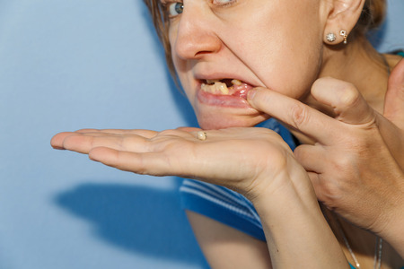 Women, showing mouth without tooth using fingers and dropped tooth crown.Focus on the crown. Standard-Bild - 99519423