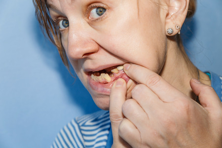 Women, showing mouth without tooth (broken) using fingers Standard-Bild - 99466306