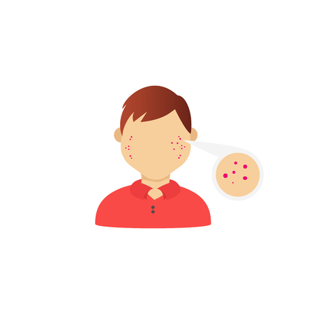 Eczema on the face. Vector illustration of diseases of the skin Çizim