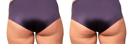 Diet, fitness, healthy lifestyle, Body care. Overweight woman with thick legs and buttocks, obese female body Imagens