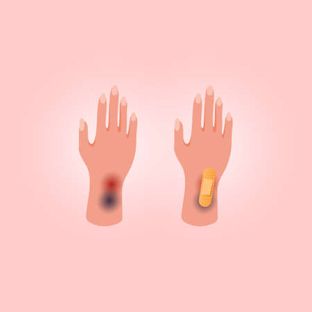 Physical injury human hand with open cut. Medical adhesive plaster on pink background. Flat lay style. 向量圖像