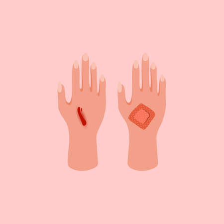Broken, cut, injured hand. First aid for bruises, trauma icon on pink background. Medical adhesive plaster. Flat lay style. 向量圖像