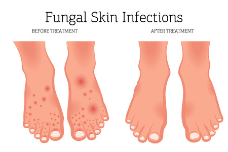 Fungal diseases of the skin of the feet and nails. Athlete's foot, onychomycosis, candidiasis. Concept before and after treatment. Vector illustration
