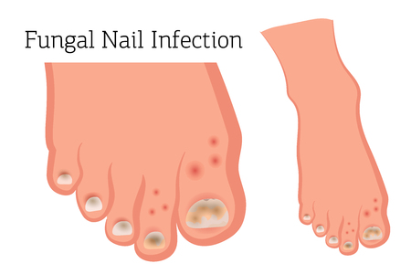 Fungal diseases of the nails and skin of the feet. Athlete's foot, onychomycosis, candidiasis. Vector illustration of medical posters and stands 일러스트