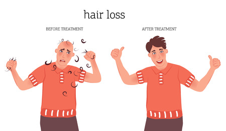 A man with a bald head and hair. The concept of baldness and hair restoration in men. Treatment of baldness, hair loss. Vector illustration