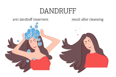 The girl washes her head with a therapeutic shampoo for dandruff and the result of treatment after. Dandruff problem on the head. Vector illustration of skin disease Illustration