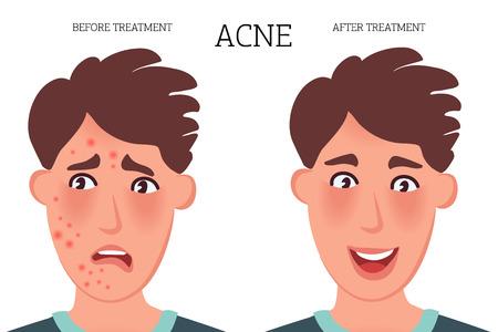 El rostro de una persona con acné antes y después del tratamiento. Ilustración de vector de enfermedades de la piel Ilustración de vector