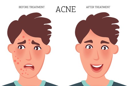 The face of a person with acne before treatment and after therapy. Vector illustration of skin diseases