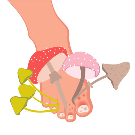 Fungal disease of the skin of the feet and nails. Athlete's foot, onychomycosis, candidiasis. Vector illustration of medical posters and stands