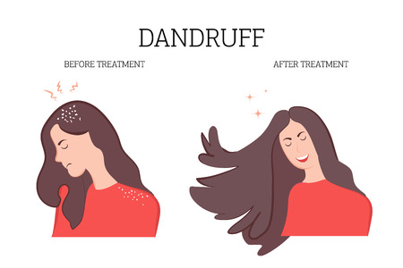 The illustration shows the girl's dandruff and beautiful hair after treatment. The patient enjoys a good result. Vector illustration for medical institutions