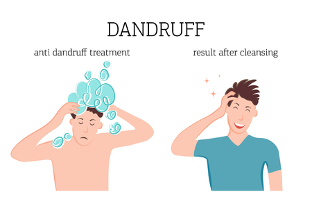 A man washes his head with therapeutic dandruff shampoo. The man is glad that the dandruff has disappeared after shampooing. Vector illustration of skin disease problem