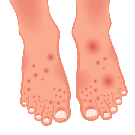 Human leg with skin damage. Dermatitis, neurodermatitis, mycosis, psoriasis. Vector illustration of fungal skin diseases