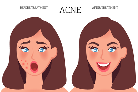 Girl with pimples on her face before treatment and after therapy. Inflammation under the skin, bacterial disease and toxins on the skin. Vector illustration of people