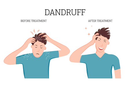 Dandruff on the scalp bothers the person. Fungal diseases of the skin, dermatology. Medical banner concept of the disease before and after treatment. Vector illustration