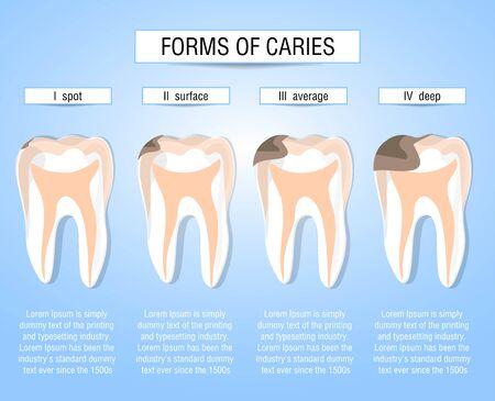 Kariesformen. Entwicklungsstadien des kariösen Prozesses. Sehhilfe für Studenten, Zahnärzte, Patienten der Klinik. Niederlage ist eine Quelle der Zerstörung in den Zähnen. Vektor-Illustration Vektorgrafik