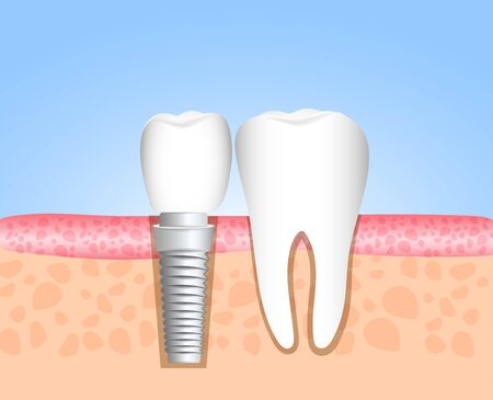 Realistic dental implant structure with all parts: crown, abutment, screw. Healthy teeth and dental implant. Dentistry. Implantation of human teeth. Vector illustration Illustration
