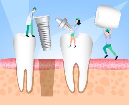 Dentists install a dental implant. Dentistry. Implantation and treatment of human teeth. Vector illustration Illustration