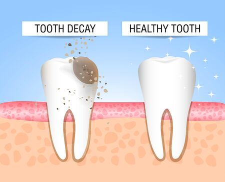 The concept of healthy and diseased tooth. Visual aid for students, dentists, patients of the clinic. Defeat caries, the focus of destruction in the teeth. Vector illustration Illustration