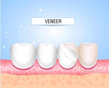 Veneers, Lumineers, onlays, microprosthesis. Installation of veneers. Aesthetic medicine. Direction dentistry orthopedics