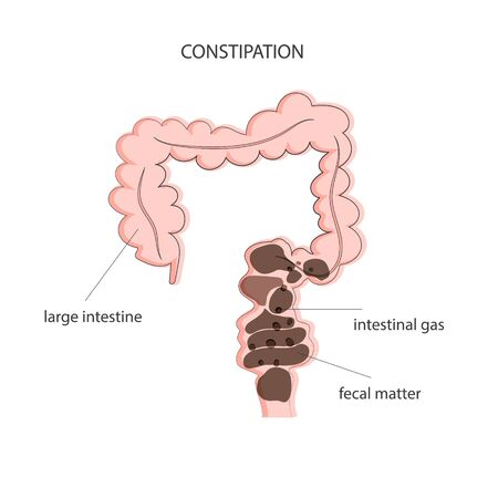 Fecal obstruction and gas accumulation in the colon. Medical poster constipation. Vector illustration Stock Illustratie