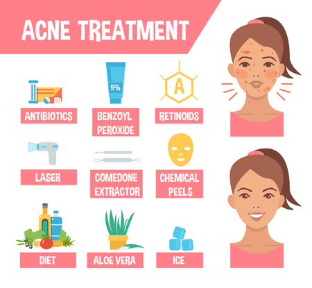procedures: Acne treatment procedures. Acne infographic elements. Vector illustration. Illustration