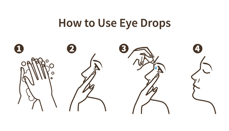 Instruction how to use eye drops. Vector illustration. 일러스트