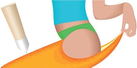 cellulit: Cellulit - narancsbőr hatása a nők