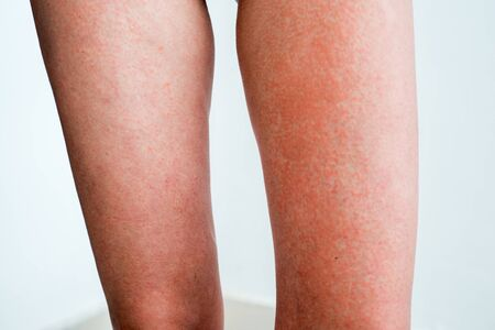 Severe sunburn, summer tan, poor sun protection. Sun allergies, obstruction, itching pain and blisters on the skin of the legs.