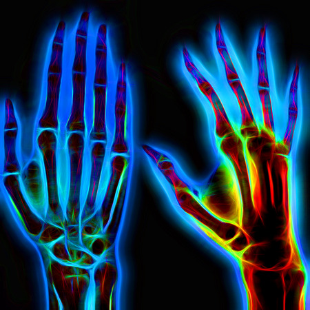 phalanx: Illustrated image of a human hand with X-ray technology Stock Photo