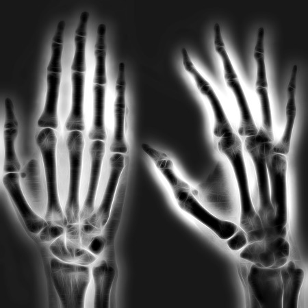 anatomy of the finger: Illustrated image of a human hand with X-ray technology Stock Photo