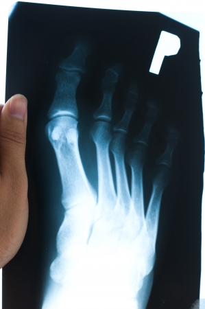 thumb x ray: Authentic x-ray of male foot Stock Photo