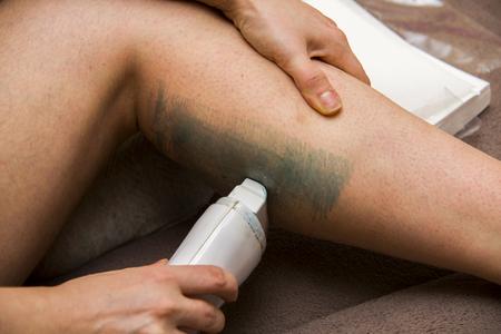 amateur: Mujer que consigue las piernas de aficionados para la depilaci�n con cera en casa