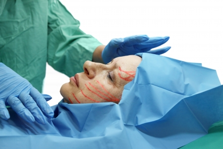 facelift: Preparing for cosmetic surgery facelift