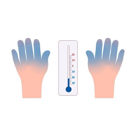 Frostbite hands and thermometer icon vector