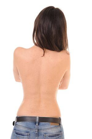 Pimples and redness on back of young girl, isolated on white background photo