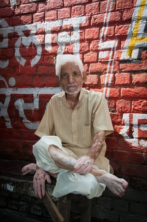 amritsar: Amritsar, India - August 26, 2011 - Senior good-natured man with cigarette and depigmentation areas on skin