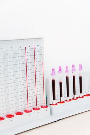 Laboratory tolls for blood examination photo