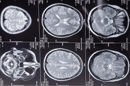 computer tomography: Closeup of a computer axial tomography scan (CAT scan) of a head