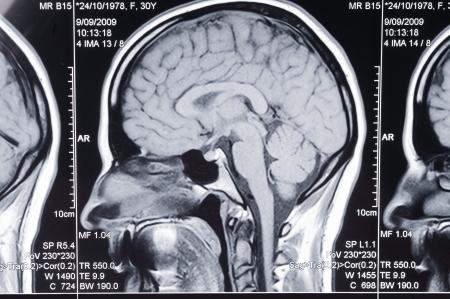 Closeup of a computer axial tomography scan (CAT scan) of a head