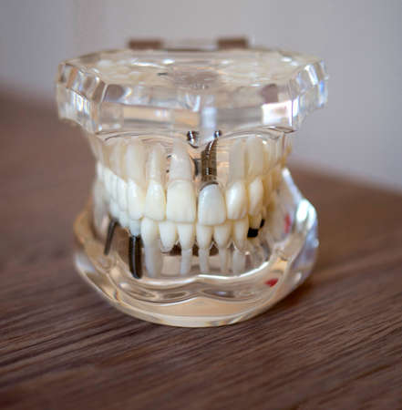 Model of jaw with teeth and implants close up Banque d'images