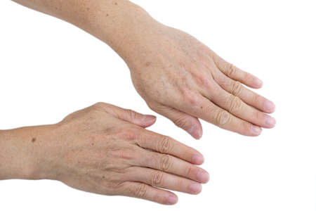Small white and brown spots on the skin of senior man hands and arms (Idiopathic guttate hypomelanosis).  Isolated on white background.