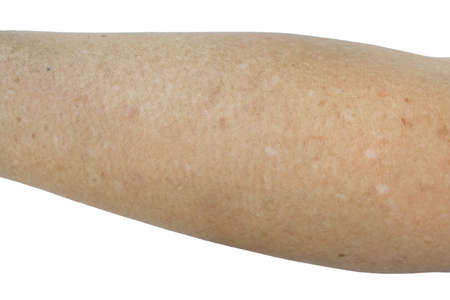 Small white and brown spots on the skin of senior man arm (Idiopathic guttate hypomelanosis).  Isolated on white background. Imagens