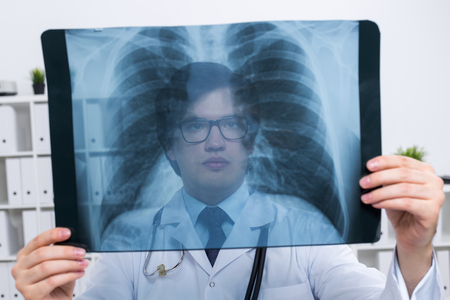 chest xray: Young caucasian doctor holding chest x-ray on bookshelf background