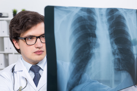 chest xray: Young handsome doctor with chest x-ray Stock Photo