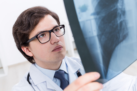 chest xray: Closeup of handsome doctor closely examining chest x-ray Stock Photo