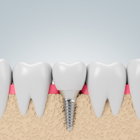 Row of teeth with implant screw over gray background. Concept of dental hygiene and care. 3d rendering Standard-Bild - 118648266