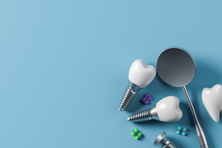 Implant screws, dental mirror and pieces of orthodontic braces over blue background. Concept of medicine. 3d rendering mock up Stockfoto