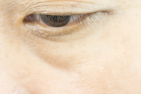 Asian woman eye with wrinkle under eye bag.