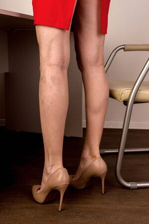 Varicose veins on a slim female legs. Phlebology - image Reklamní fotografie
